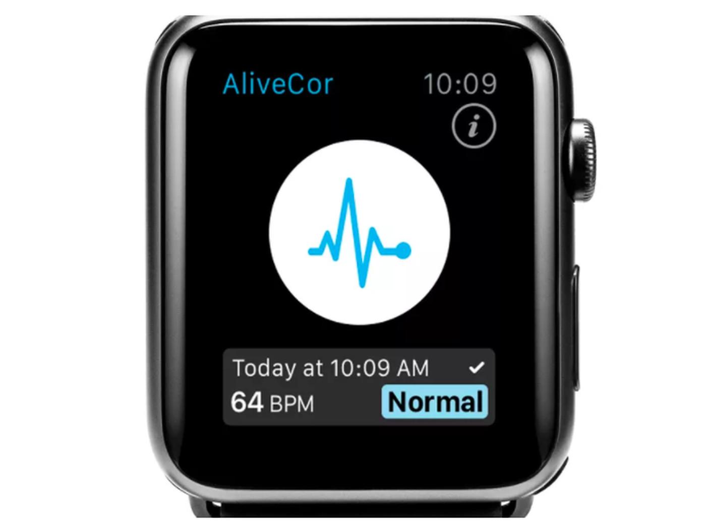 Bộ cảm biến trên Apple Watch có thể phát hiện thấy kali trong máu của bạn – không cần kim